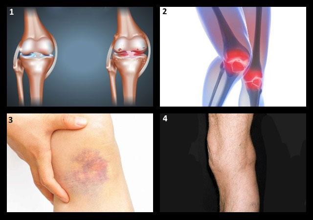 возможные причины болей в подколенной ямке