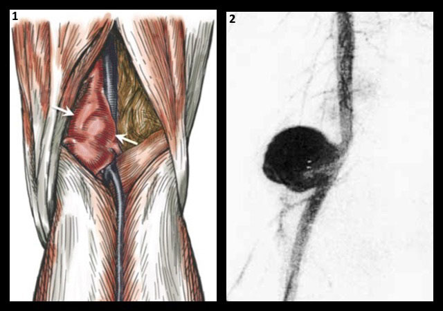веретенообразная и мешотчатая аневризма подколенной артерии