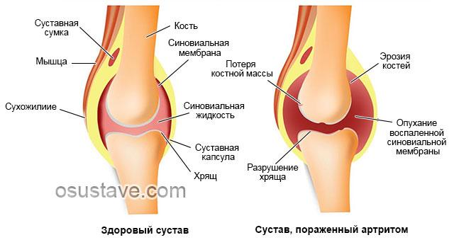 здоровый коленный сустав и пораженный артритом