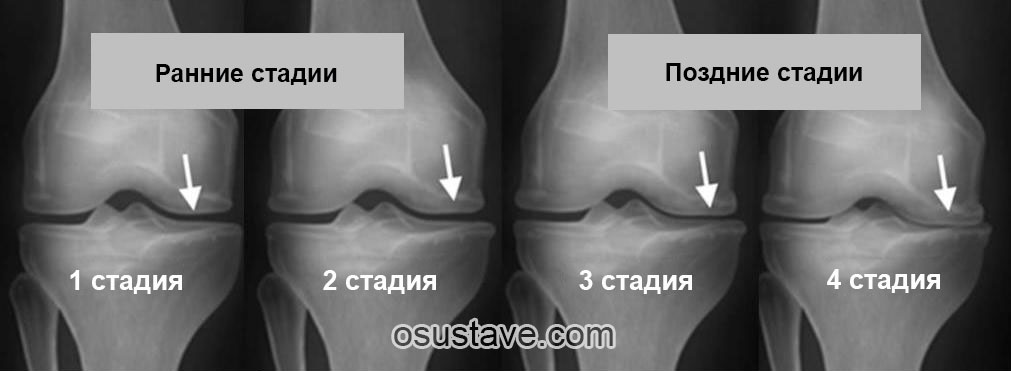 Артрит вследствие на травми на глезена