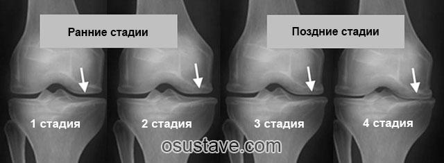4 стадии артрита на рентгеновских снимках