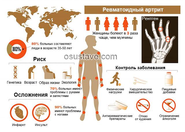 инфографика про ревматоидный артрит