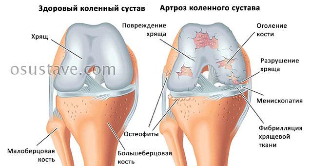 нормальный коленный сустав и артроз колена