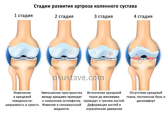 4 стадии развития артроза колена