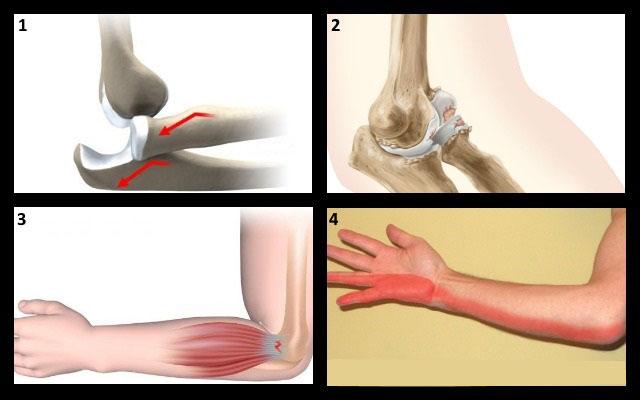 Боль в локтевом суставе правой руки при поднятии тяжести