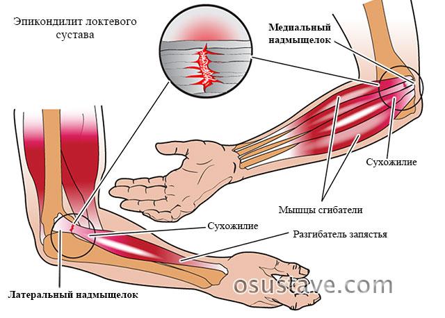 латеральный и медиальный эпикондилиты локтевого сустава