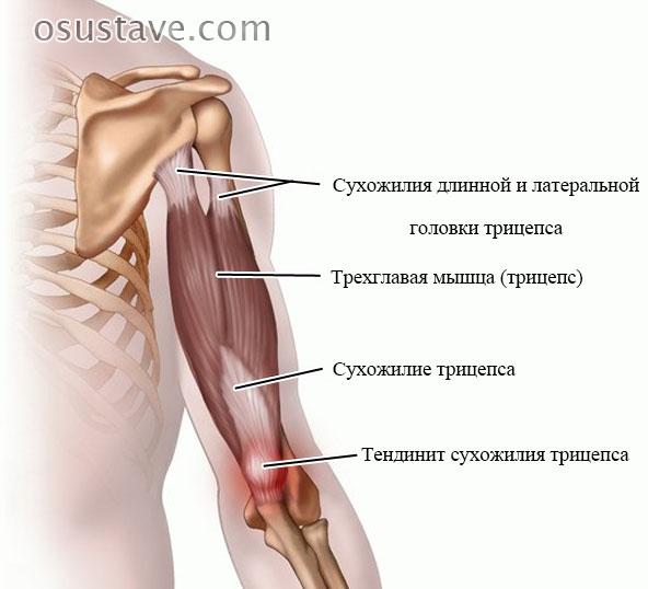 тендинит сухожилия трицепса