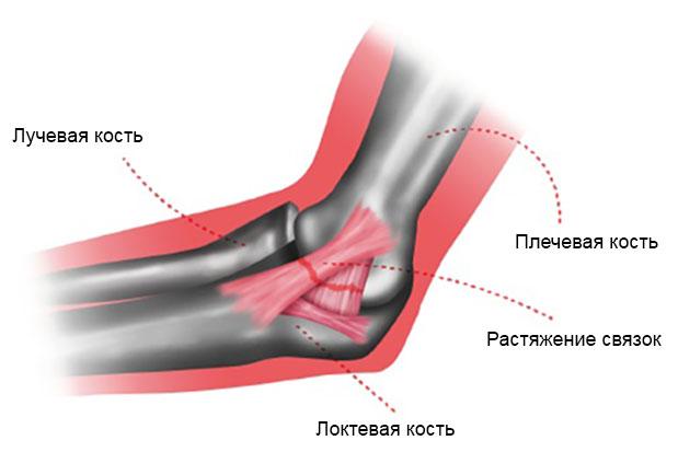 повреждение связок, расположенных с внутренней стороны локтя