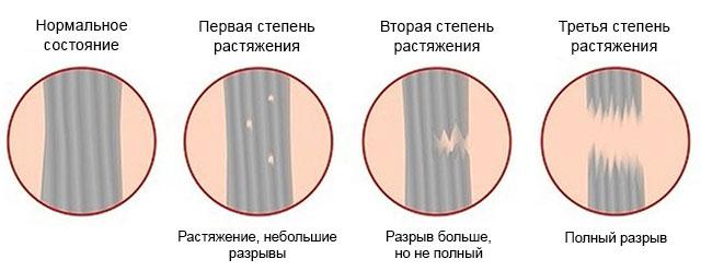 три степени растяжения связок