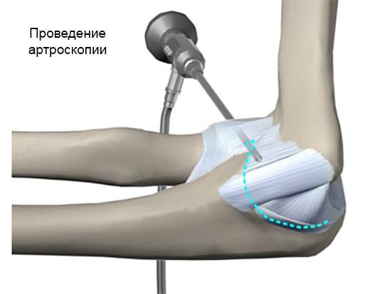 проведение артроскопии