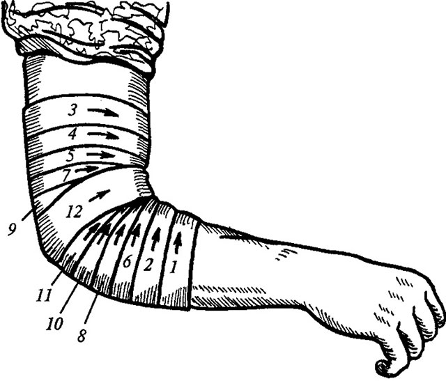 порядок наложения повязки на локтевой сустав
