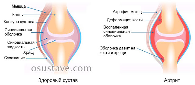 поражение сустава артритом на примере колена