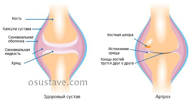 поражение артрозом на примере коленного сустава