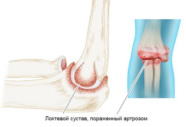локтевой сустав, пораженный артрозом