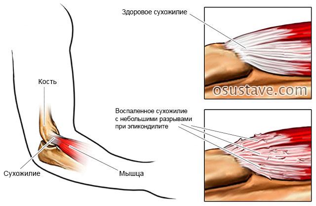 сухожилие, пораженное эпикондилитом