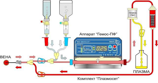 схема процедуры плазмафереза на аппарате Гемос