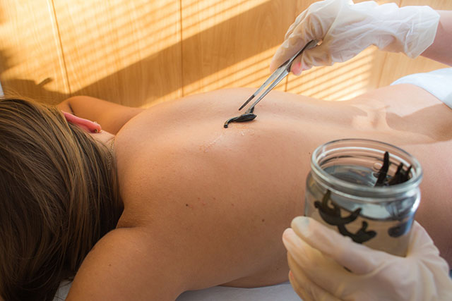 сеанс гирудотерапии для лечения болей в спине
