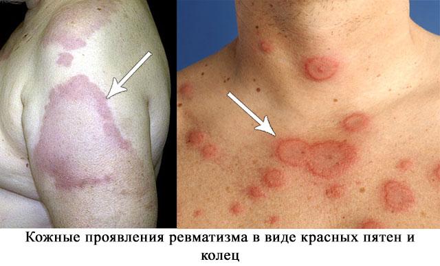 внешний вид кожных симптомов ревматизма