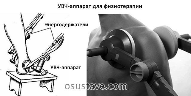процедура УВЧ для суставов