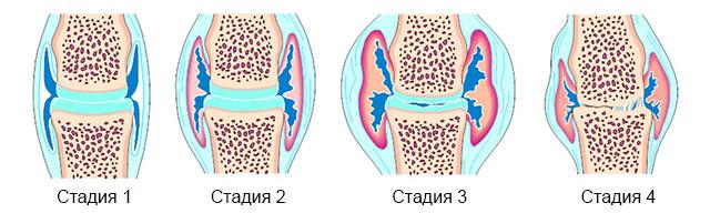 4 стадии артрита сустава