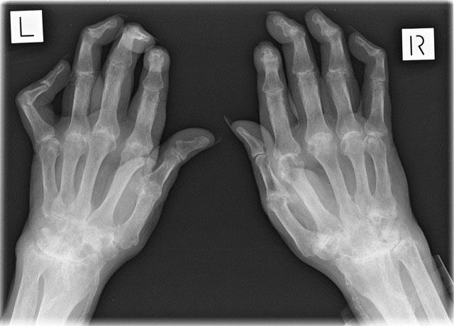 рентгенограмма кистей рук, пораженных ревматоидным артритом