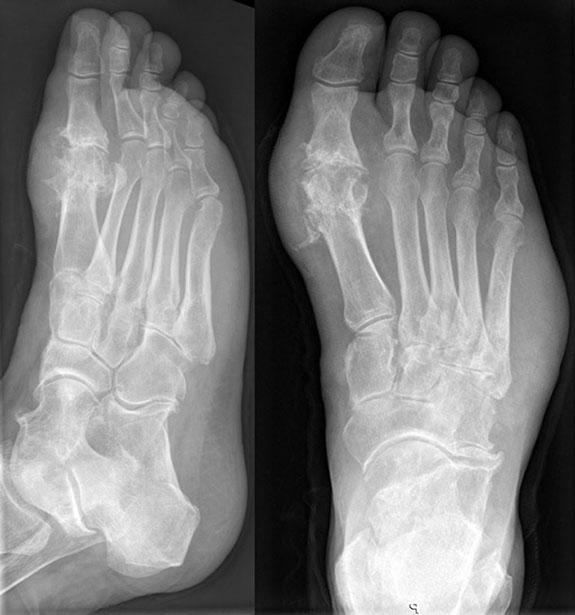 рентгеновский снимок стопы при подагрическом артрите
