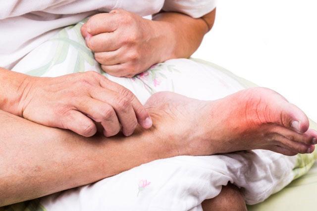 болезненность, покраснение кожи и повышение температуры в области пальцев стопы