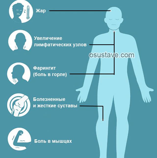 симптомы болезни Стилла