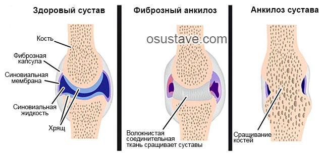 фиброзный и костный анкилозы