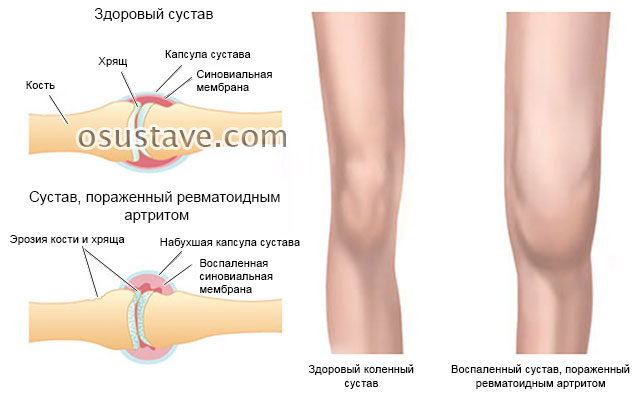 Ревматоидный артрит - симптомы и признаки, лечение, первые признаки у женщин
