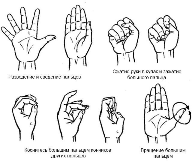 примеры упражнений ЛФК для рук при ревматоидном артрите