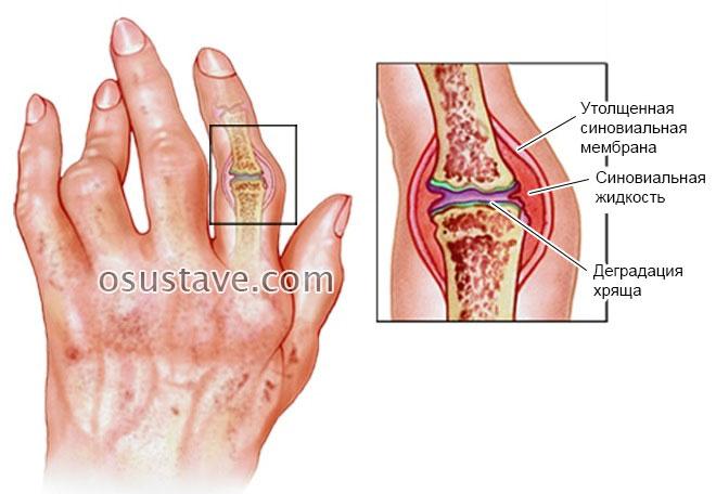 изменения в пальцах при прогрессировании заболевания