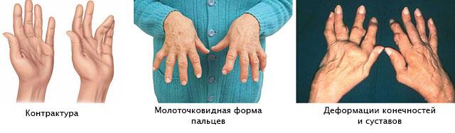 контрактура, молоточковидная форма пальцев, деформация пальцев руки