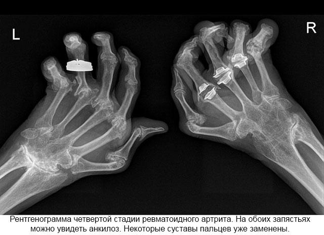 диагностирование ревматоидного артрита при помощи рентгена