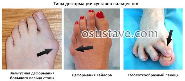 виды деформаций пальцев ног