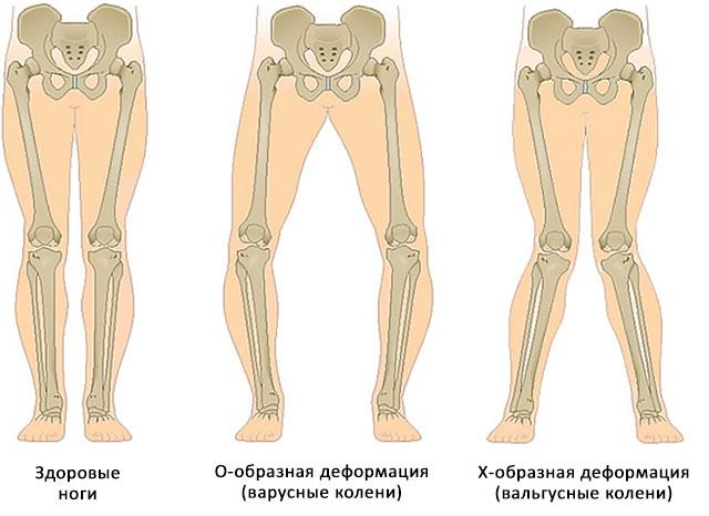 виды искривления ног
