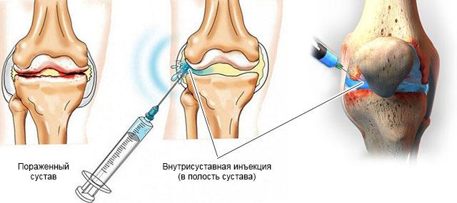 внутрисуставная инъекция
