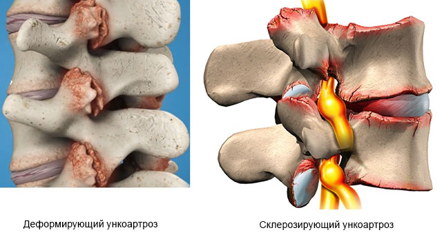 деформирующий и склерозирующий унковертебральный артроз
