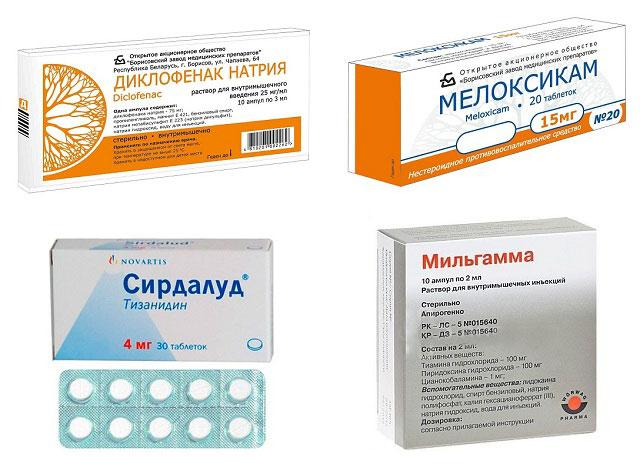 препараты Диклофенак, Мелоксикам, Сирдалуд, Мильгамма