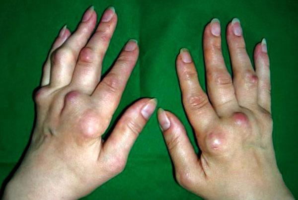кисти рук, пораженные деформирующим полиостеоартрозом