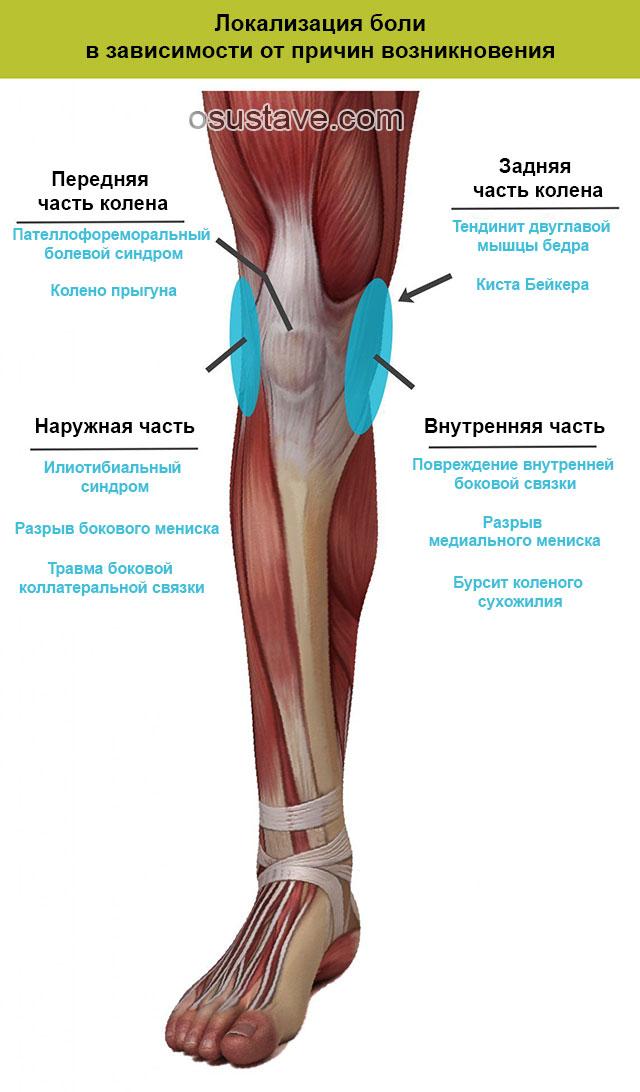локализация болей в зависимости от причин возникновения