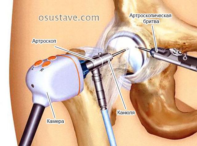 проведение эндоскопии тазобедренного сустава
