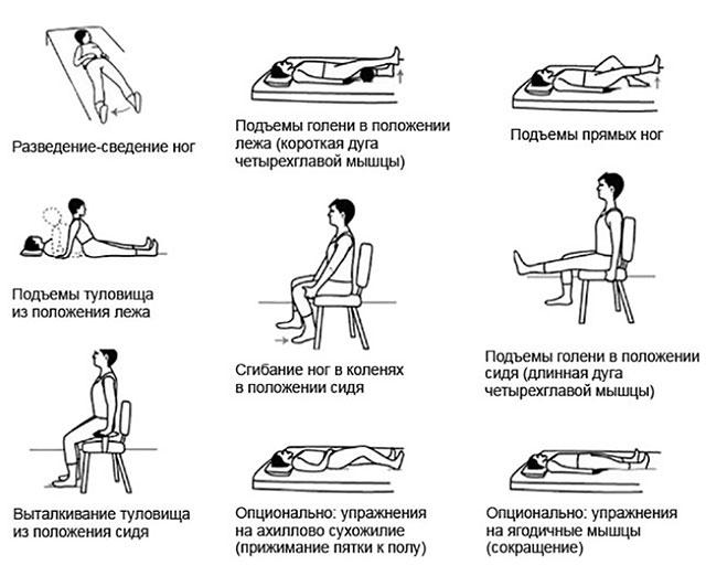 примеры упражнений ЛФК для тазобедренного сустава