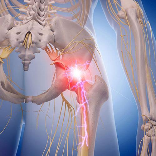 Стреляющая боль в тазобедренном суставе причины. Классификация бедренной боли. Причины возникновения боли в наблюдается суставе