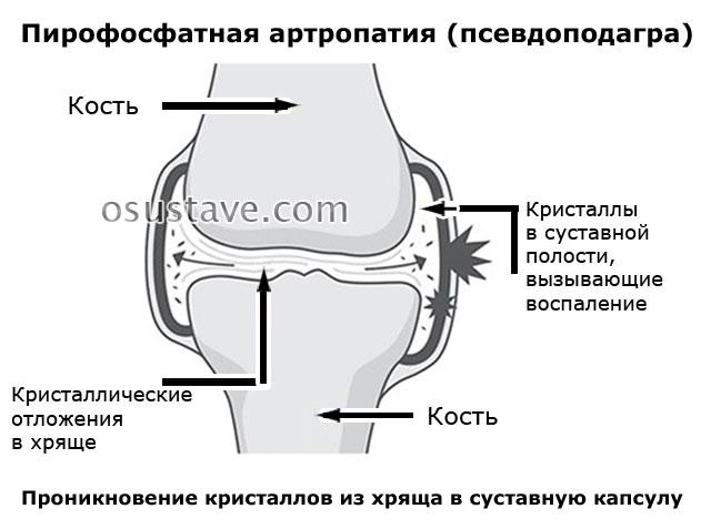 пирофосфатная артропатия (псевдоподагра)