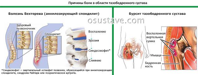 причины боли в области тазобедренного сустава: болезнь Бехтерева, бурсит