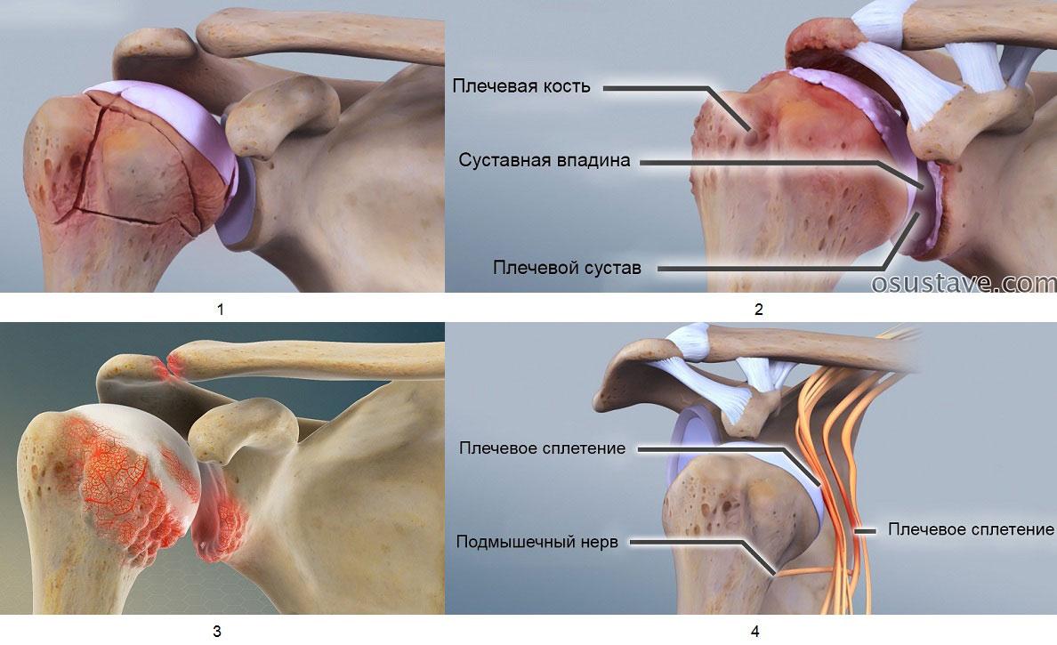 Что такое артрит ключицы?