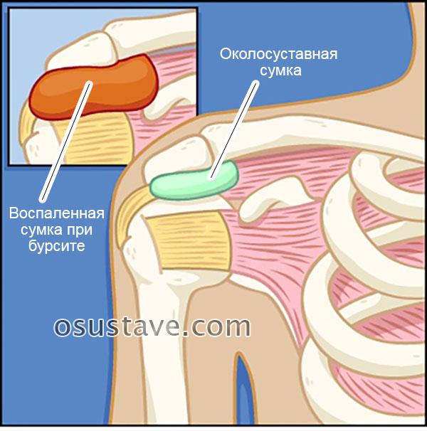 Сильно болят плечевые суставы чем лечить thumbnail