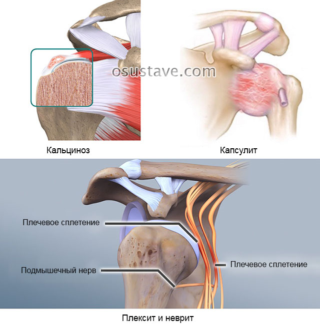 кальциноз, капсулит, плексит и неврит плечевого сустава