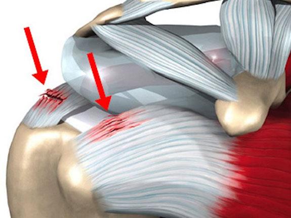 воспаленные сухожилия в плечевом суставе